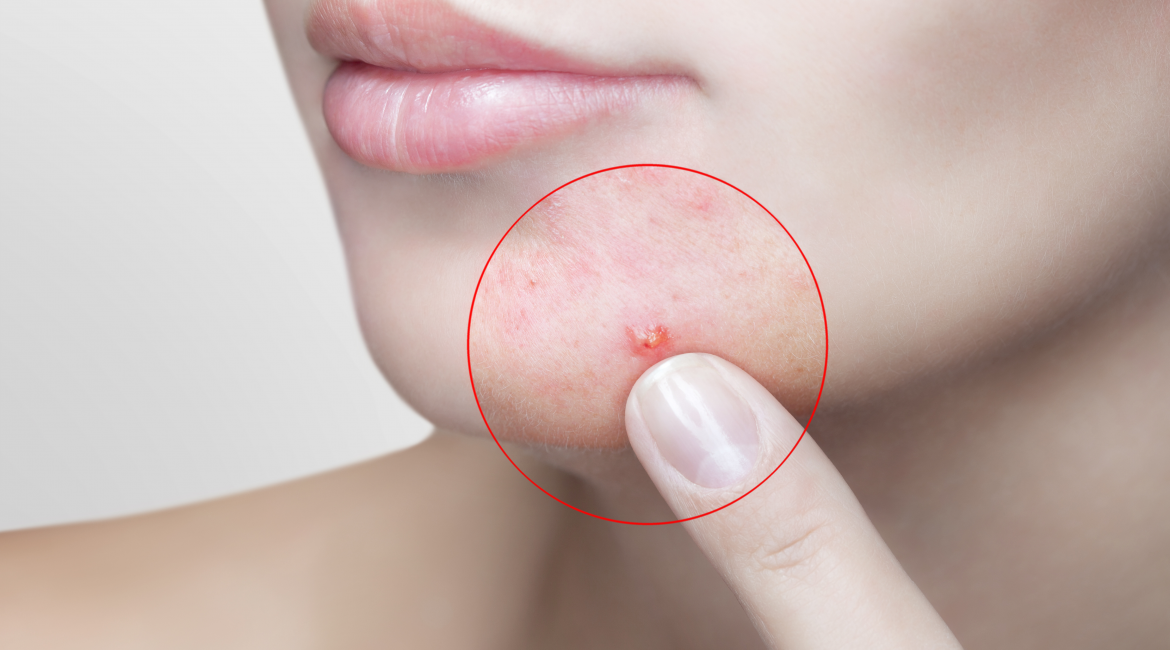 Acne Treating Options